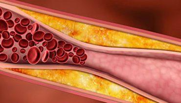 kolesterol ne iyi gelir tedavisi damar tıkanıklığı