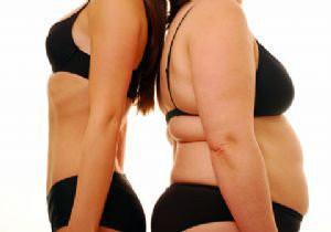 mide küçültme ameliyatı kimlere yapılır