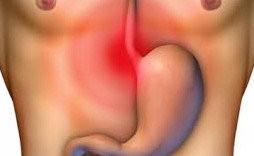 mide yanmasına ne iyi gelir