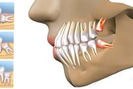 20lik diş belirtileri ağrısı nasıl geçer