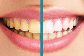 diş sararması nasıl geçer dişler neden sararır