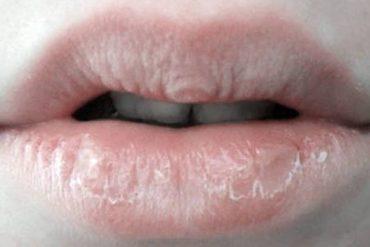 dudak kuruluğu nasıl geçer