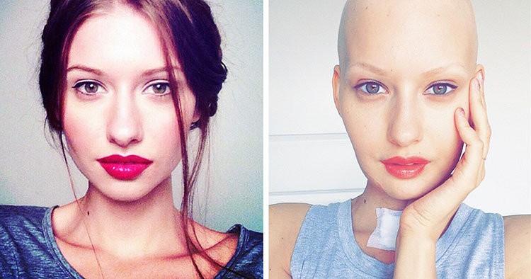 kanser nedir belirtileri nelerdir
