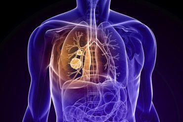 KOAH hastalığı nedir belirtisi tedavisi