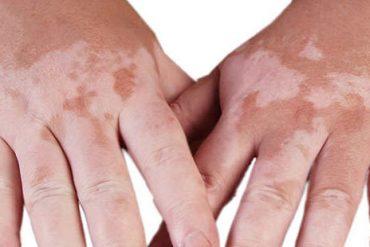 vitiligo hastalığı nedir, vitiligo tedavisi