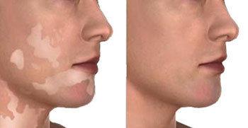 vitiligo tedavisi