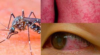 zika virüsü belirtileri