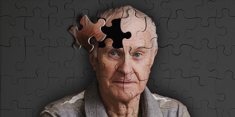 alzheimer hastalığı nedir, belirtileri nelerdir