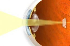 astigmat nedir, belirtileri ve tedavisi