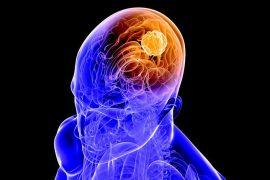 beyin tümörü belirtileri nedir, tedavisi ve ameliyatı