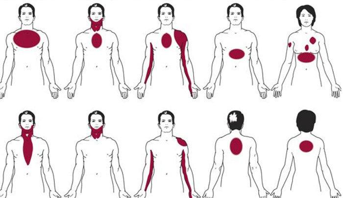 kalp krizi belirtileri