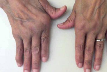 romatoid artrit nedir, belirtileri, tedavisi