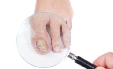 tırnak mantarı tedavisi için 10 bitkisel çözüm