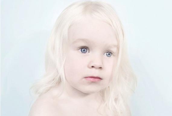albino hastalığı nedir, neden olur, belirtileri ve tedavisi