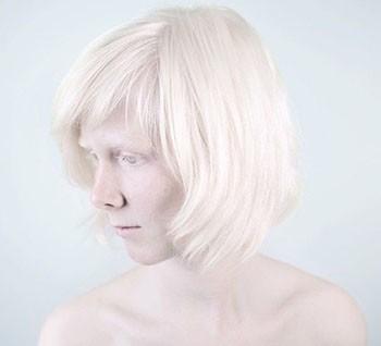 albino nedir