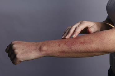 lupus nefriti hastalığı nedir, belirtileri ve tedavisi
