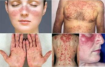 lupus nefriti nedir
