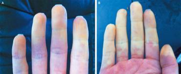raynaud hastalığı nedir, belirtileri ve tadavisi