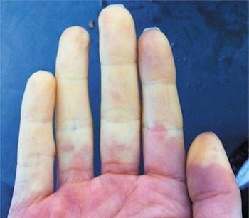 raynaud hastalığı nedir