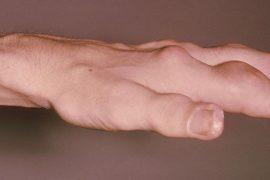 gut hastalığı belirtileri nedir, gut tedavisi